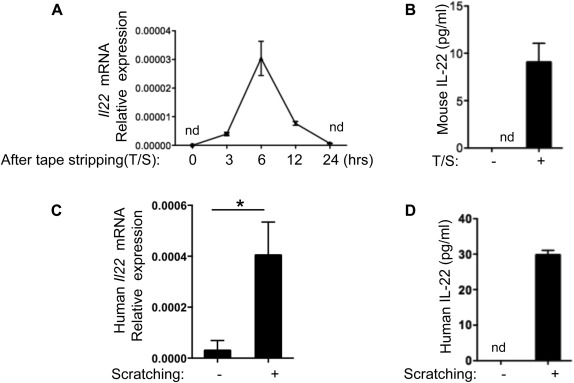 IL-22 derived from γδ T cells restricts Staphylococcus aureus