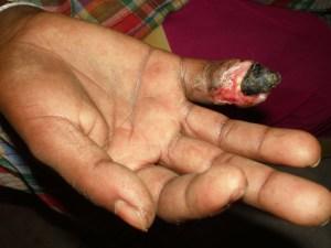 Effects of snake bite on finger