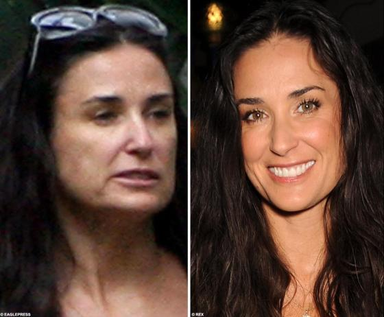 Demi Moore 3 25 08 2 Demi Moores Plastic Surgeon, Dr. Brian Novack, is Not Board Certified Photo