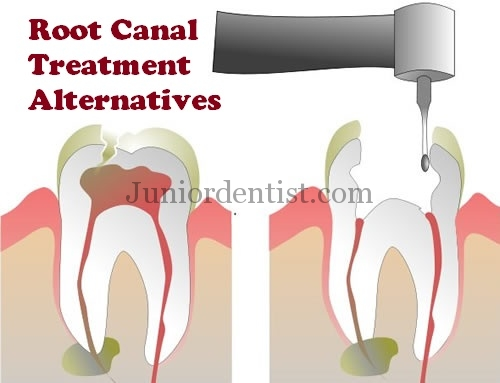 5 Alternative Treatments to Root canal