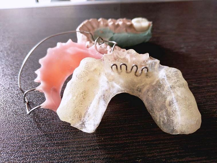 Advantages and Limitations of Removable Orthodontic Appliances