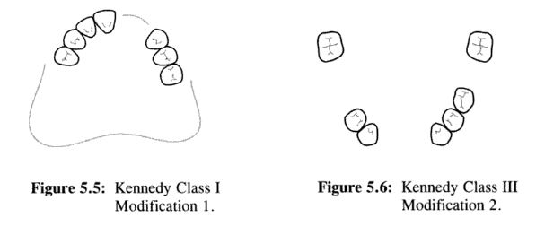 Kennedy\u0027s Classification of Edentulous Space and Applegate\u0027s Rules