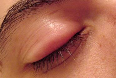 Possible Causes Of Swollen Eyes And Rash All Over Body