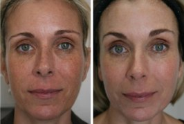 Anti-aging Skin Treatments to Reduce Wrinkles and Look Younger