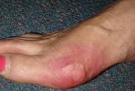 Gout Symptoms And Treatment, What You Should Know