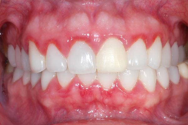 Gum disease treatments in Fulham  Hammersmith Fulham