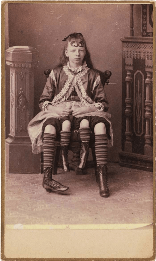 Josephene Myrtle Corbin, the Four-Legged Woman, 1818