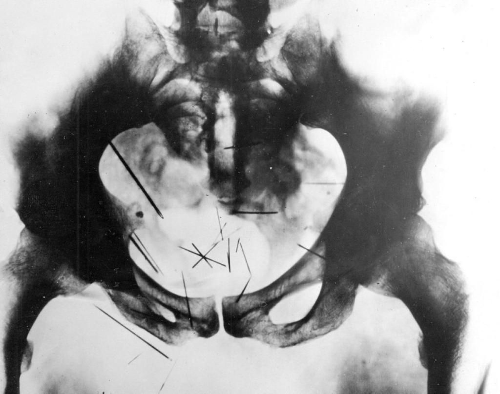 albert-fish-x-ray