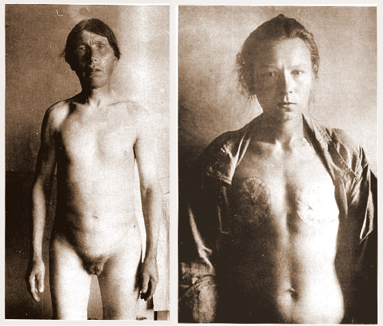 Skoptsy-man with total castration or great seal and woman with breasts cut off.