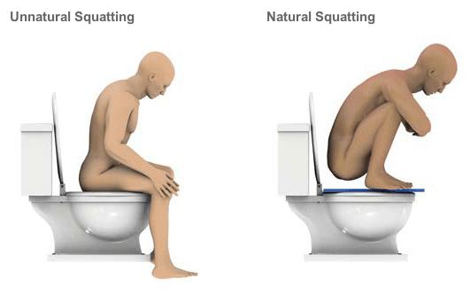 unnatural squatting
