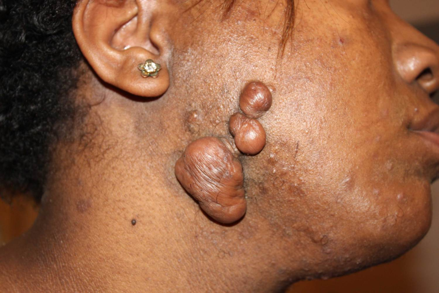 Advanced facial keloid tumors in a young African American female.