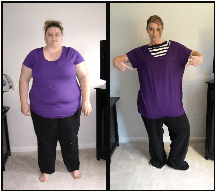 Gastric Bypass Before and After - Khaleej Mag