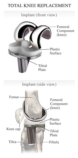 Which Type of Implant is Right For You?