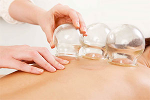Glass cups are applied to the back during Cupping treatment