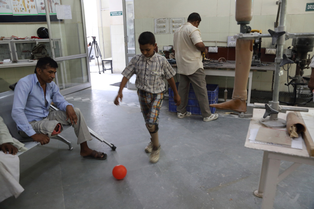 A boy, fitted with an artificial limb plays with a ball in the hospital as part of his rehabilitative process.