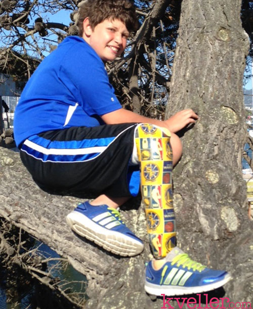 Amit-on-tree