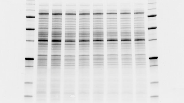 How Western Blot Normalization Works Lab Manager