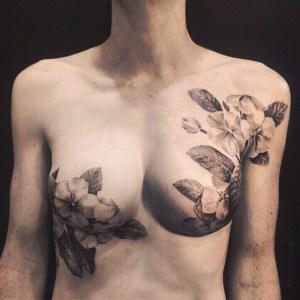 Tumore al seno: quando un tatuaggio nasconde le cicatrici e restituisce sorriso 1