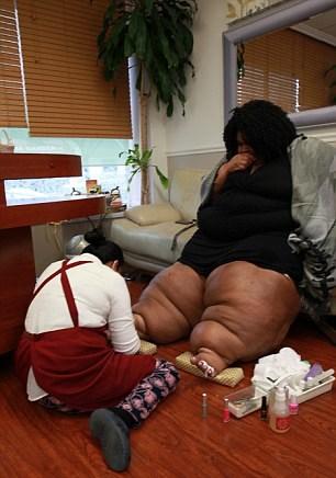 Lipedemia, Katia ha le gambe larghe 120 centimetri 3