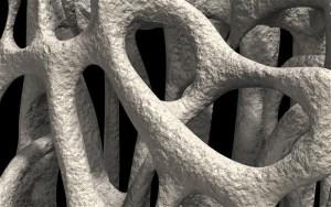 Depressione e osteoporosi, antidepressivi rendono ossa fragili