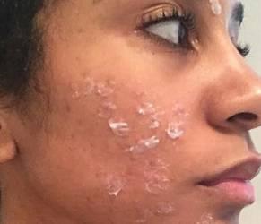 Reazione allergica alla crema per la ceretta: il suo volto ora è così FOTO