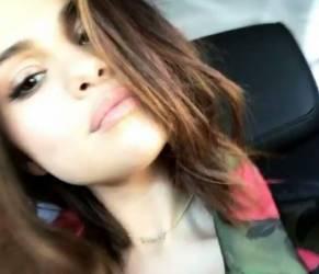 Selena Gomez rifatta? Cosa è successo al suo viso VIDEO
