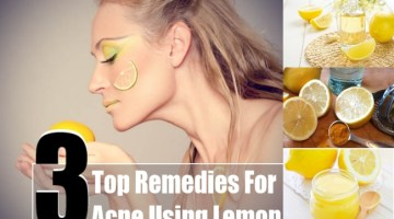 Acne Using Lemon