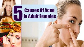 Causes Of Acne In Adult Females