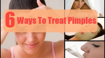 Ways To Treat Pimples