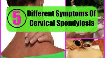 Different Symptoms Of Cervical Spondylosis