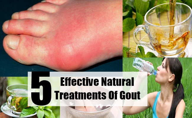 foods that affect uric acid best way to cure gout naturally lower uric acid xpress