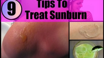 Tips To Treat Sunburn