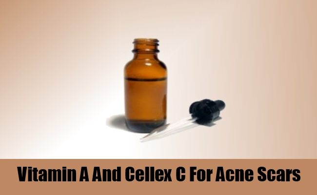 Vitamin A And Cellex C