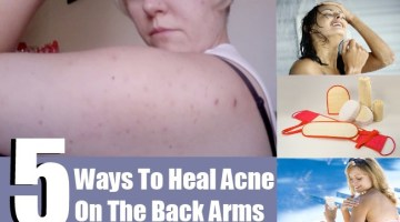 Acne On The Back Of Arms