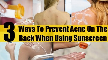 Prevent Acne On The Back