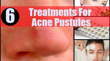 Treatments For Acne Pustules