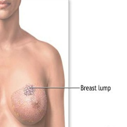 some complications of oversized breast