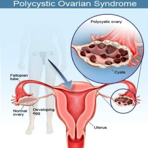 Overcome Polycystic Ovarian Syndrome