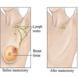 Prevention Of Breast Mastectomy