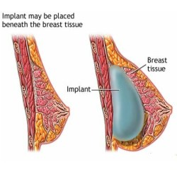 breast implants types