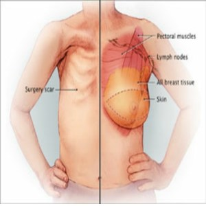 breast mastectomy