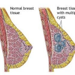 Symptoms Of Fibrocystic Breast Condition