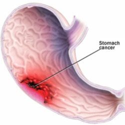 Symptoms Of Stomach Cancer