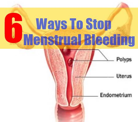 6 Ways To Stop Menstrual Bleeding