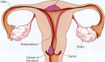 Top 9 Symptoms Of Uterine Cancer