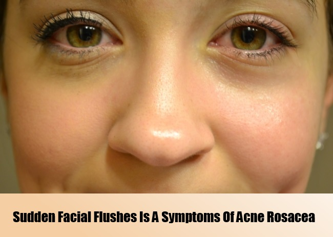 Common facial rosacea