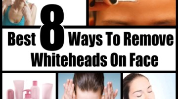 Whiteheads On Face