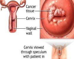 Causes And Treatments Of Cervical Uterine Cancer