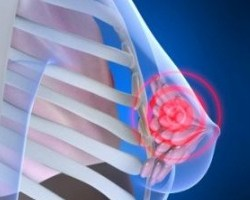 How To Deal With Swollen And Sore Breasts