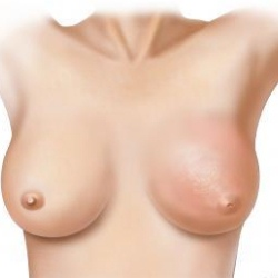 Signs And Symptoms Of Breast Infection